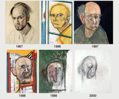 Self portraits di William Utermohlen